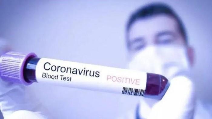 Kaum Pria Lebih Rentan Terinfeksi Virus Corona Ketimbang Para Wanita, Ini Penjelasan Ahli