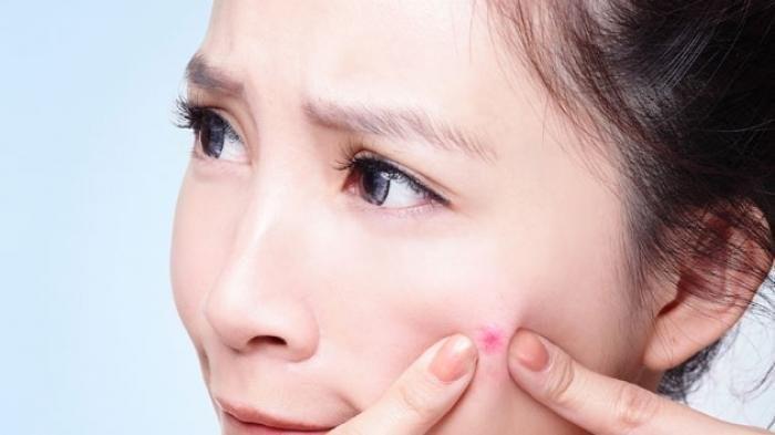 4 Rekomendasi Sabun Cuci Muka Ampuh Hilangkan Bekas Jerawat